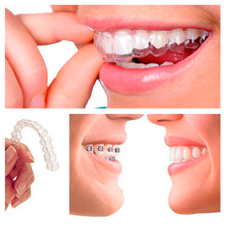 Invisalign Invisible Dental Braces for Adults Sydney - Adult