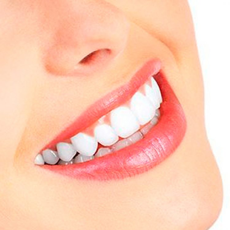 Smile Makeovers Dentist | Cosmetic Dentistry Solutions |Dental
